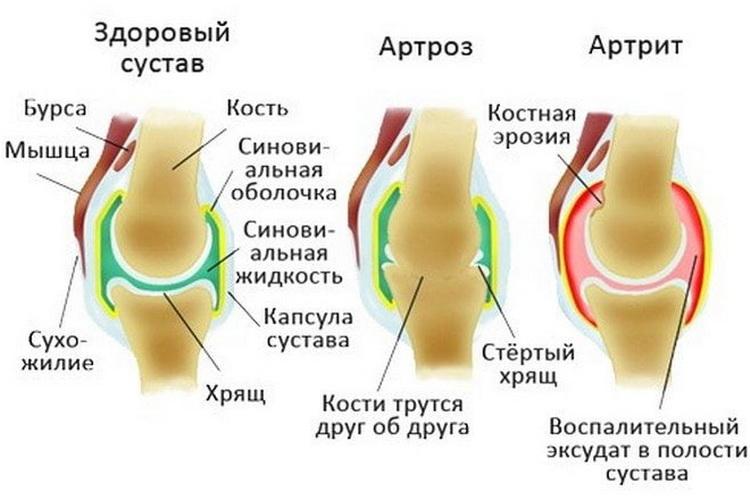 остеоартроз лечение голеностопного артрита